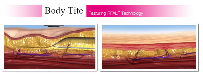 Body Tite เป็นการดูดไขมันส่วนเกินออก