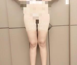 กางเกงกระชับ 01