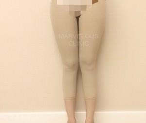 กางเกงกระชับ 02