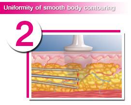 ดูดไขมันกระตุ้น Collagen ในชั้นใต้ผิว