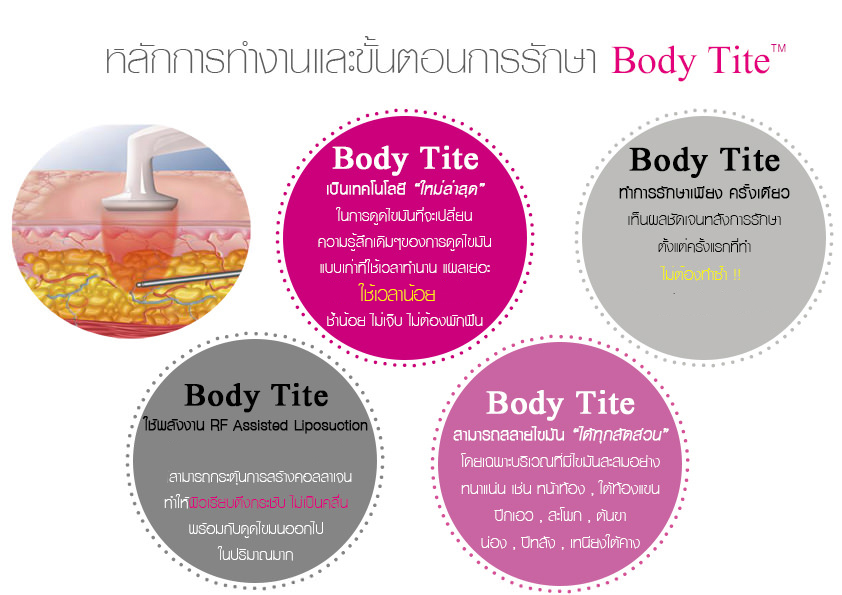ขั้นตอนการรักษาด้วยเทคนิค body tite